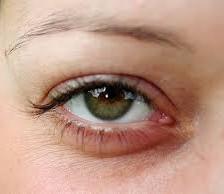Sindromul ochilor uscati